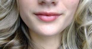 وصفات طبيعية اسمرار ما حول الفم